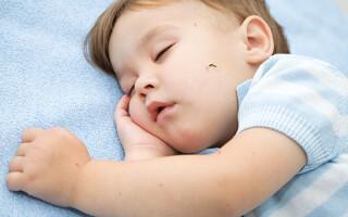 Помощь грудничку при укусе комара