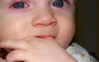 Почему слезится глаз у грудничка?