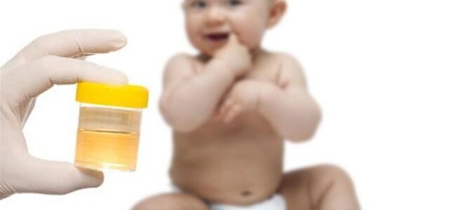 Способы собрать мочу у грудничка мальчика?