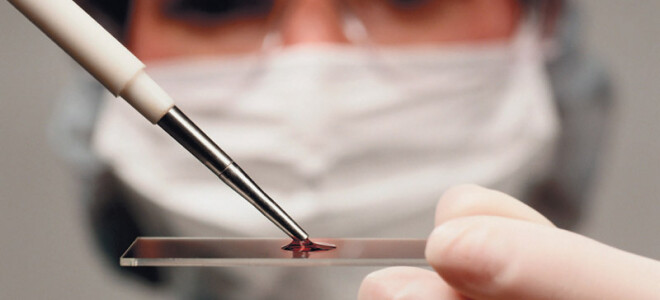 Анализ крови грудничка: ОАК и биохимия